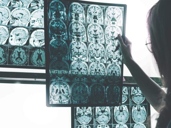 brain scan of patients with neurodegenerative disorders